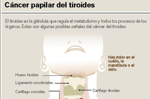 CANCER PAPILAR DE TIROIDES